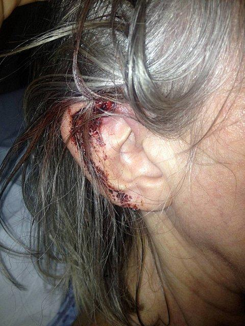 Injuries to Rita A'court's ear